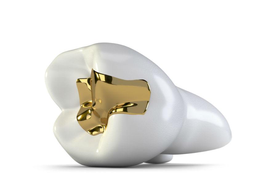verbraucherblick 01/2016 Gold zu Geld machen